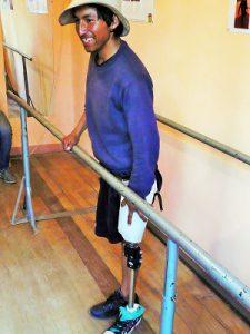 patient-new-leg