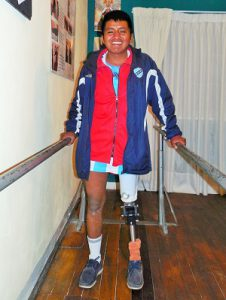 patient-showing prosthetic-leg