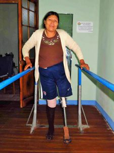 woman-with-prosthetics